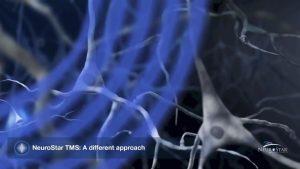 rTMS治療增加神經介質